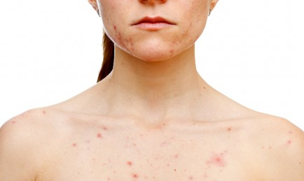 Peaux sensibles et acnéiques cover
