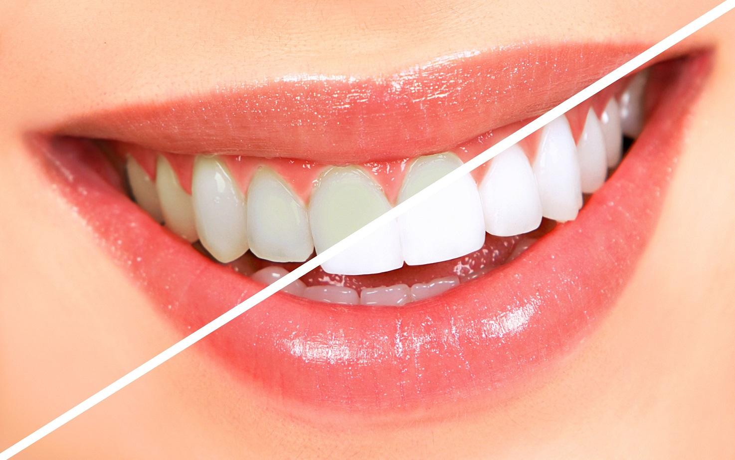 Un sourire de Star: conseils pour des dents blanches et saines naturellement