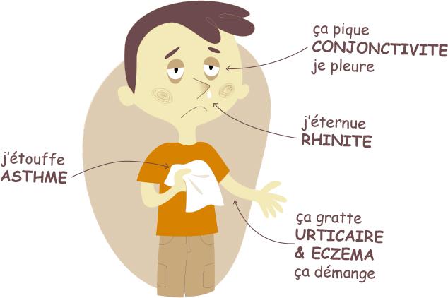 Allergies saisonnières Reconnaître et soulager les symptômes