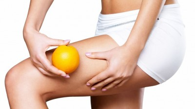 Cellulite, causes d'apparition et traitement