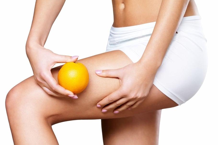 Cellulite, causes d'apparition et traitement